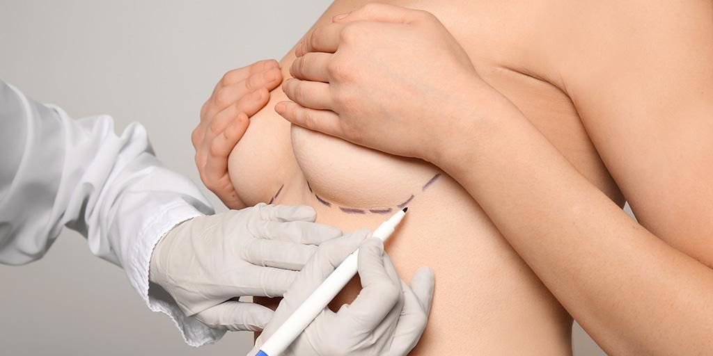 Plastic surgeon marking on patient