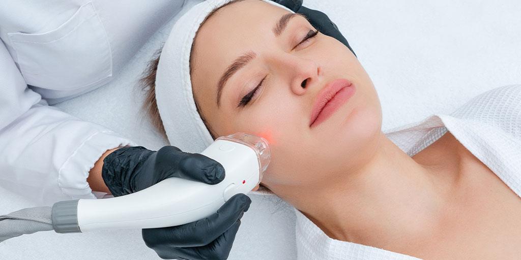 woman getting skin resurfaced